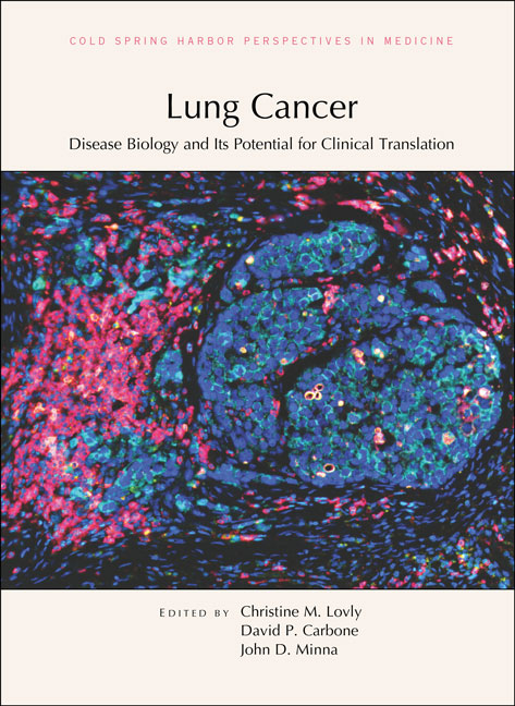Lung Cancer: Disease Biology and Its Potential for Clinical Translation cover image